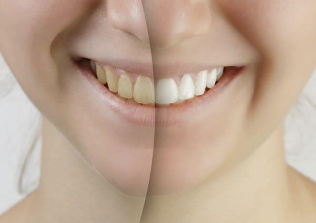 Quelles sont les raisons du jaunissement des dents ?