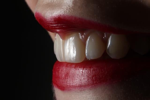 Comment détartrer ses dents à la maison ?
